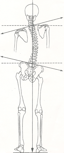 Treatment For Back Pain And Uneven Leg Length